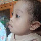 Bayi Penderita Jantung Bocor Berpulang: Selamat Jalan, Nurwania. Foto: Dokumentasi Istimewa